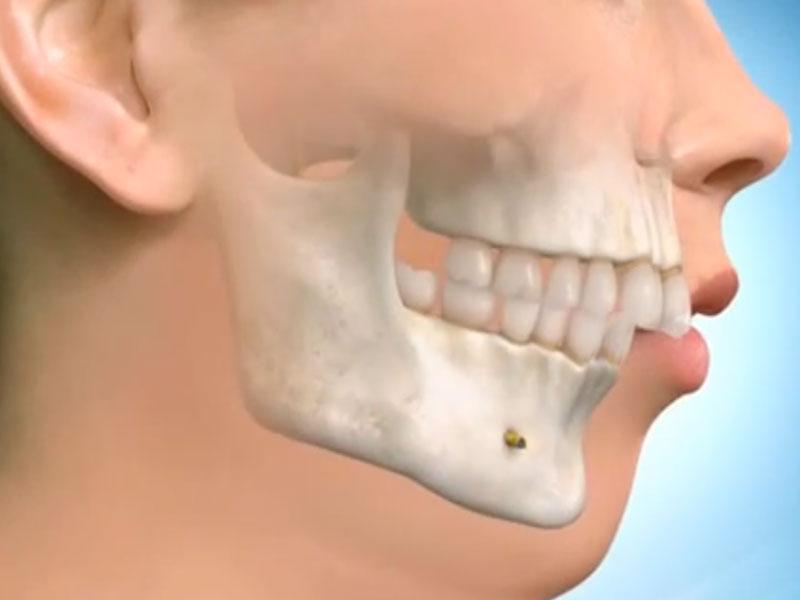 Çene - Diş Bozuklukları ve Tedavileri