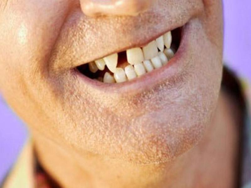 Doğuştan Diş Eksiklikleri