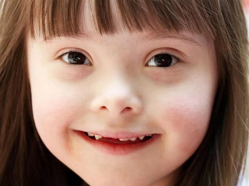 Down Sendromu´nda Ağız ve Diş Sağlığı İlişkisi