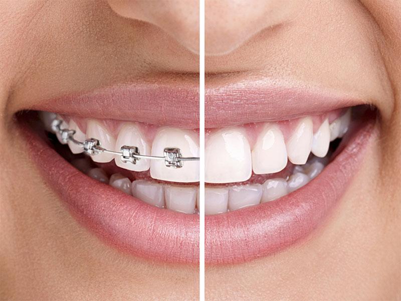 Erişkin Ortodonti (2. Faz)