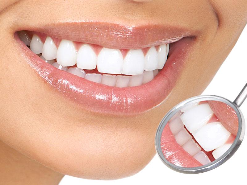 Estetik Diş Hekimliği Uygulamaları